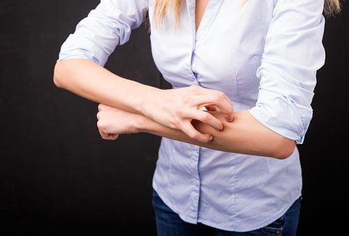 Psoriasis and psoriatic arthritis symptoms improved by bariatric surgery