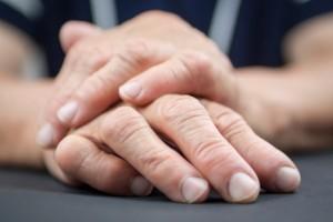 rheumatoid arthritis in women