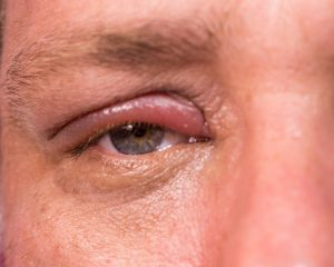 Shingles (herpes zoster) eye infection