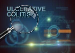 Ulcerative colitis (inflammatory bowel disease)