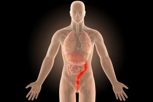Ulcerative colitis flare-up symptom management and prevention