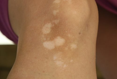 Vitiligo may increase thyroid disease risk