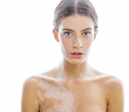 Vitiligo patients face dry eye syndrome