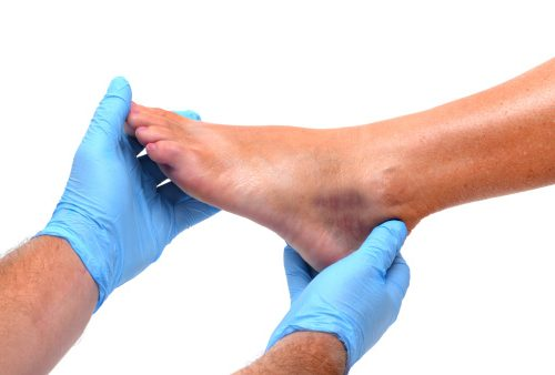 Diabetes, gangrene and diabetic foot amputation risks