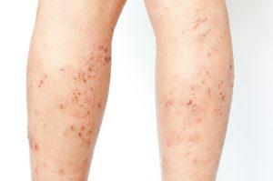 Eczemi su un naso