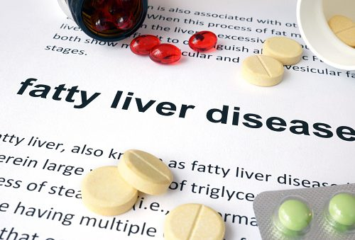 Fatty liver disease, NASH linked to a 50 percent higher mortality rate than NAFLD