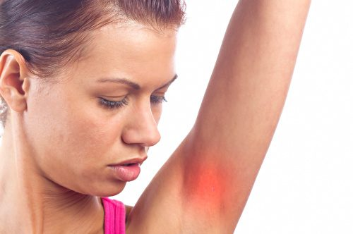Itchy Armpits Itchy Underarms Common Causes And