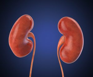 Kidney stone prevention with low-oxalate diet