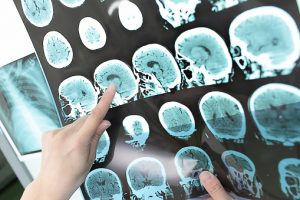 Multiple sclerosis may double early mortality risk