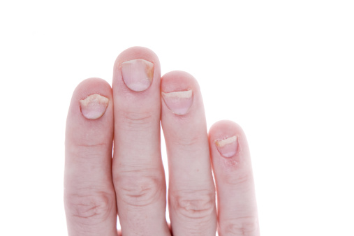 Nail psoriasis and psoriatic arthritis symptoms connected