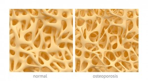Osteoporosis can be reversed by stem cell therapy