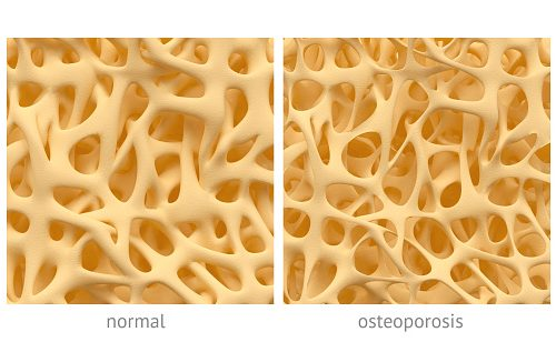 Osteoporosis can be reversed by stem cell therapy, new potential treatment