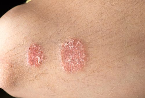 Natural Home Remedies For Psoriasis And Eczema