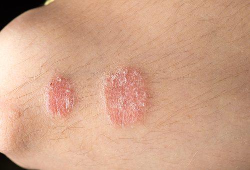 Psoriasis and psoriatic arthritis raise gout risk