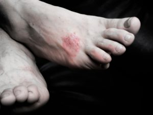 Psoriasis linked to type 2 diabetes, obesity