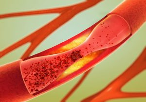 Rheumatoid arthritis increases deep vein thrombosis risk