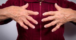 Rheumatoid arthritis raises risk of broken bones in young women