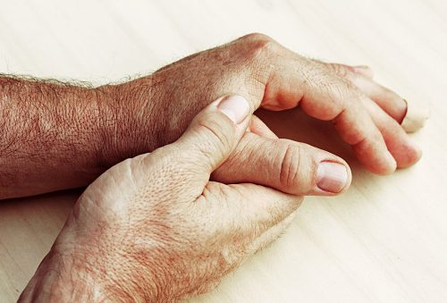 Rheumatoid arthritis risk influenced by low testosterone levels in men