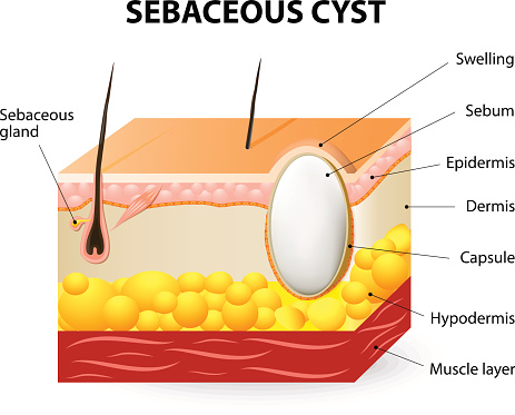 sebaceous cyst treatment causes and prevention tips. Black Bedroom Furniture Sets. Home Design Ideas