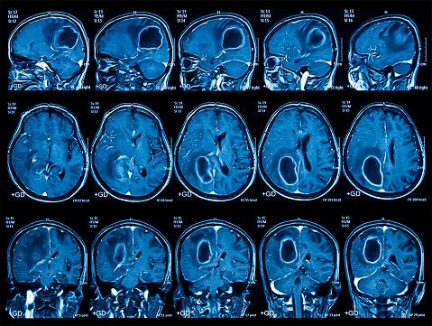 sleep-apnea, stroke, brain-stem-injuries