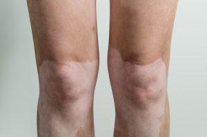 Vitiligo and the increased risk of insulin resistance