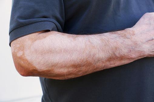 Vitiligo diet chart
