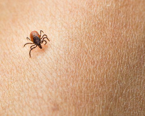 tips to prevent Lyme disease, tick bites