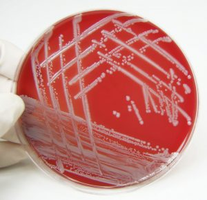 Lupus risk associated with chronic exposure to staph staphylococcus aureus bacteria