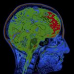 Fibromyalgia pain and osteoarthritis linked in how brain experiences chronic pain