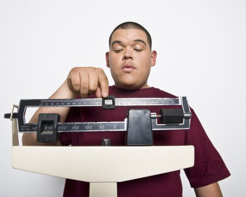 Good cholesterol improved in obese teen boys after weight loss surgery