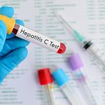Hepatitis C infection