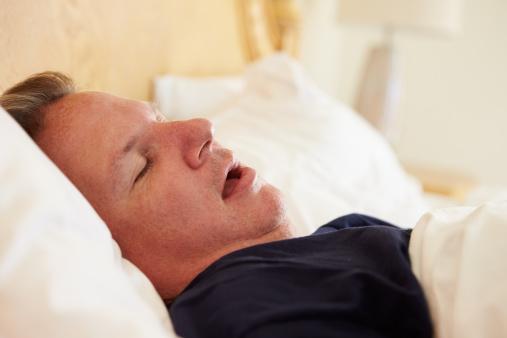 Obstructive sleep apnea symptoms in bariatric surgery patients