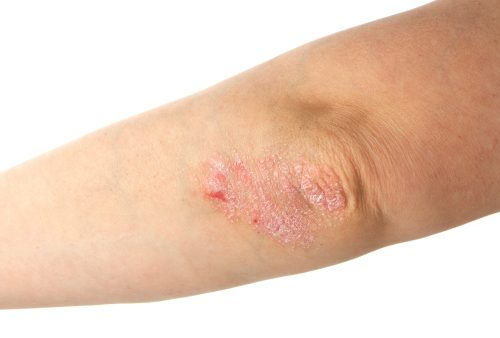 Psoriasis risk increases with high blood pressure