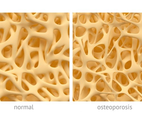 Psoriasis or psoriatic arthritis patients show higher osteoporosis and osteopenia prevalence: Study
