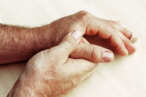 Psoriatic arthritis and psoriasis