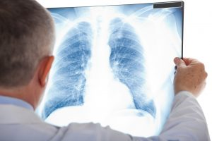 Rheumatoid arthritis affects lungs, raises risk of interstitial lung disease