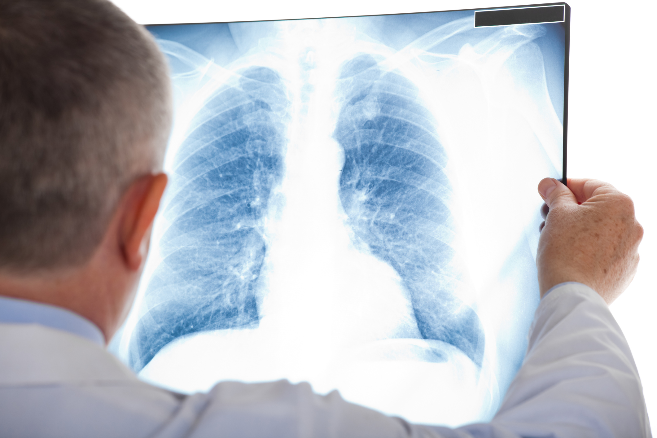 How Rheumatoid Arthritis Affects the Lungs