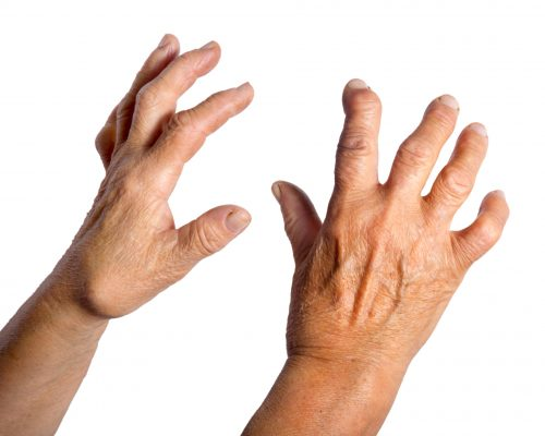 Rheumatoid arthritis risk may decline with recent urinary tract infections and gut microbiome changes, study