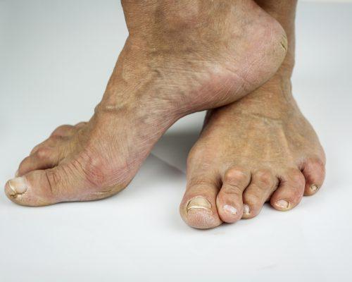 Rheumatoid arthritis patients with fibromyalgia