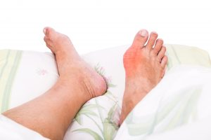rheumatoid arthritis vs. gout