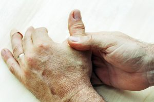 Rheumatoid arthritis vs. osteoarthritis, differences in symptoms, causes, and treatment