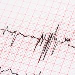 Risk of irregular heartbeat affected by race