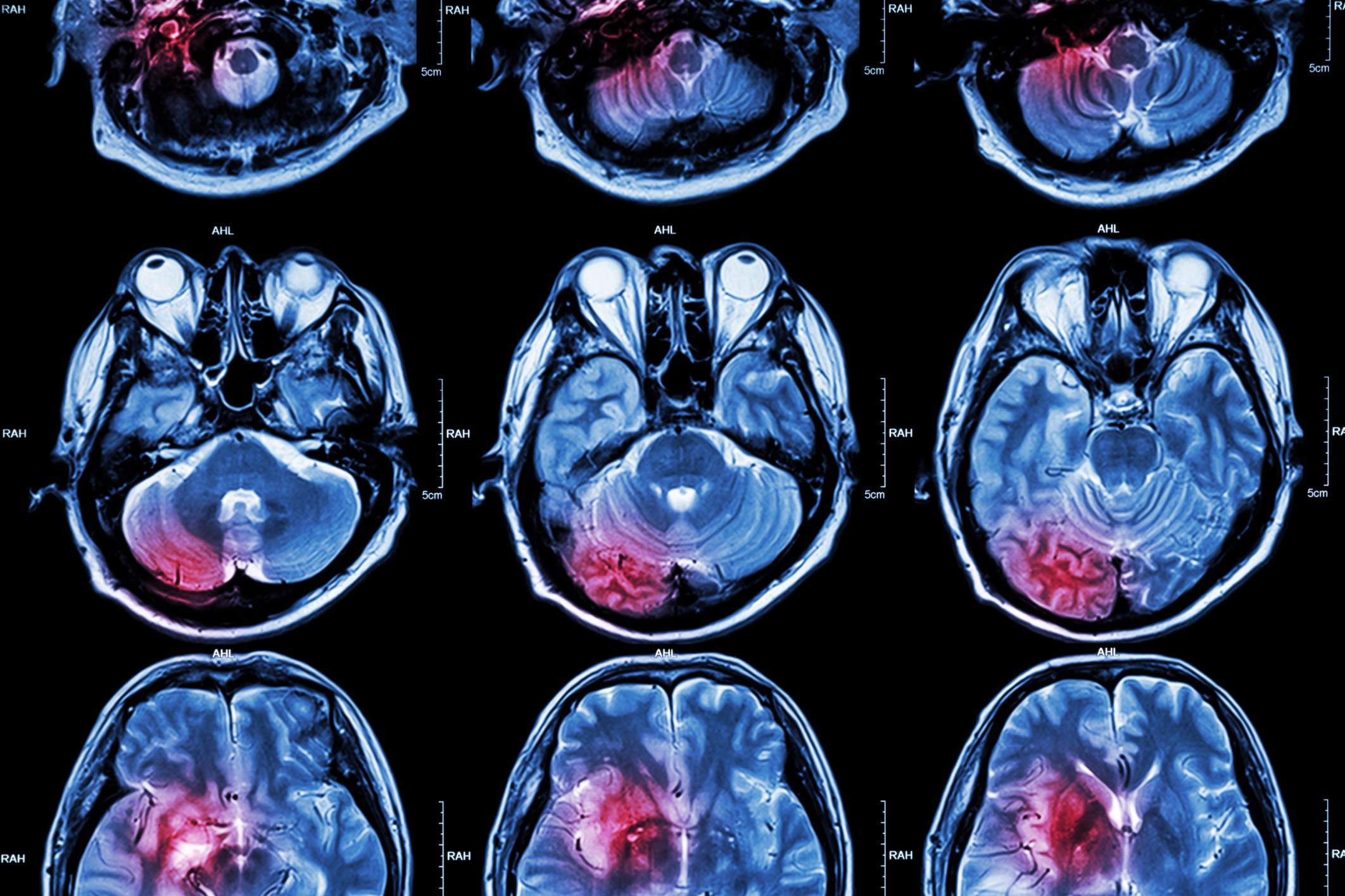 Stroke vs. Multiple sclerosis
