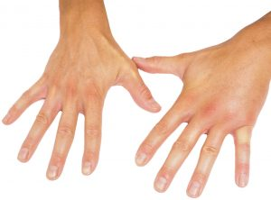 Swollen hands in the morning
