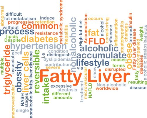 Type 2 diabetes increases risk of NAFLD, liver disease