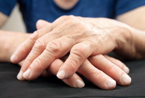 heart attack and rheumatoid arthritis risk