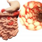 "Crohn's disease, ulcerative colitis progression and development linked to ""creeping fat"""