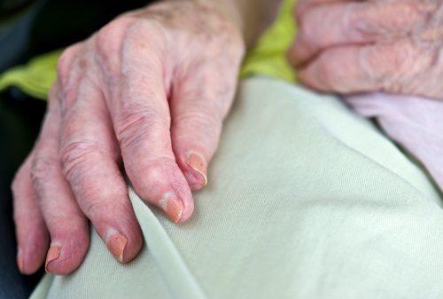 Resultado da imagem na fibromialgia, os sintomas cognitivos são piores do que na artrite reumatóide
