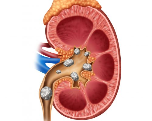 Kidney stone treatment complications common in 14 percent of patients, costs raising: Study