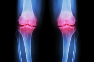 Osteoarthritis severity same as rheumatoid arthritis